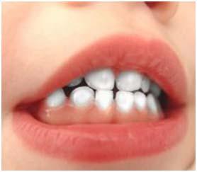 Mencegah Timbulnya Karies Gigi