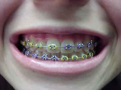 Bagaimana Perawatan Menggunakan Kawat Gigi