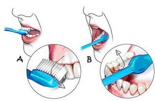 Tips Sikat Gigi yang Benar