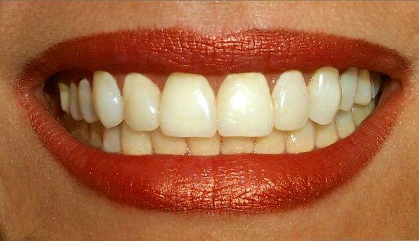 Tips Mendapatkan Perawatan Gigi Murah Bahkan Gratis