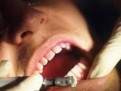 obat mematikan saraf gigi