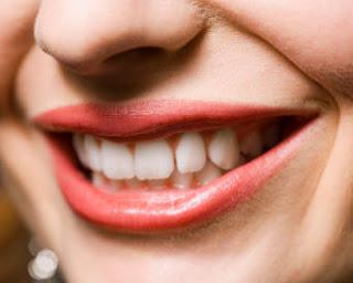 Tiga Cara Putihkan Gigi
