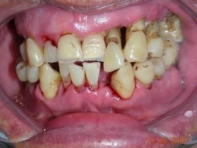 Gejala dan Penyebab Periodontitis