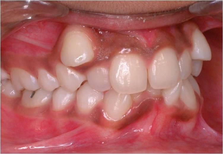 Gangguan Internal Pada Rahang Gigi