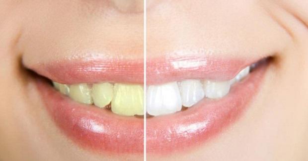 Faktor yang Mempengaruhi Warna Gigi Berubah