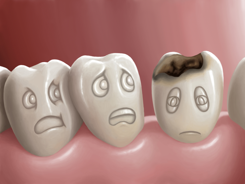 Penanganan Terhadap Gigi Berlubang