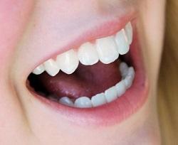 cara-memperkecil-ukuran-gigi